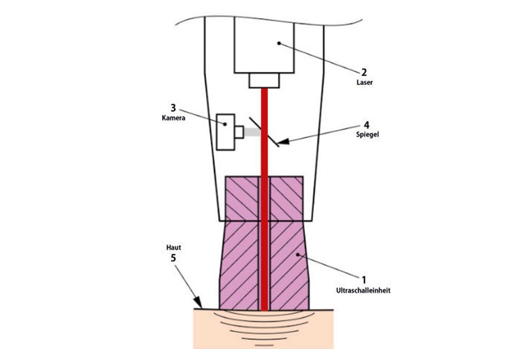 Graphische Darstellung des Ultraschall- und Lasereinheit im Kopf des Behandlungsgerätes.